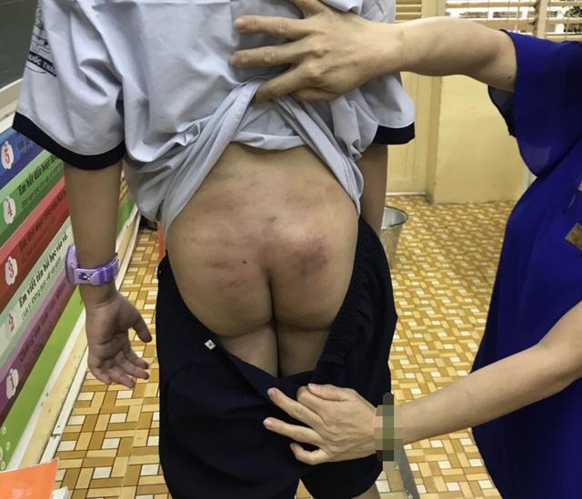 Tin 113 ngày 21/09: Chân dung kẻ sát hại cô gái gần cầu Bãi Cháy, quảng ninh