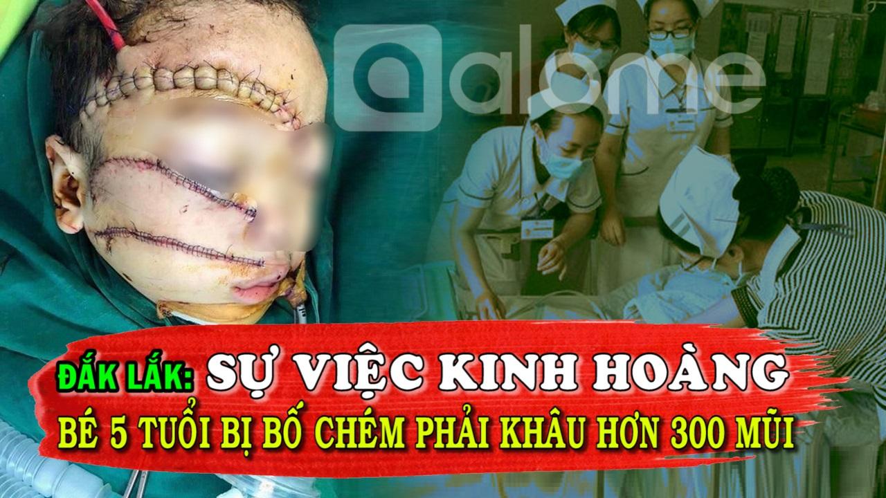 Kinh Hoàng Tại Đắk Lắk, Bé 5 Tuổi Bị Cha Chém Phải Khâu Hơn 300 Mũi