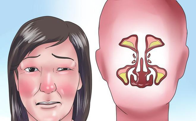 Những bài thuốc hay trị bệnh nghẹt mũi
