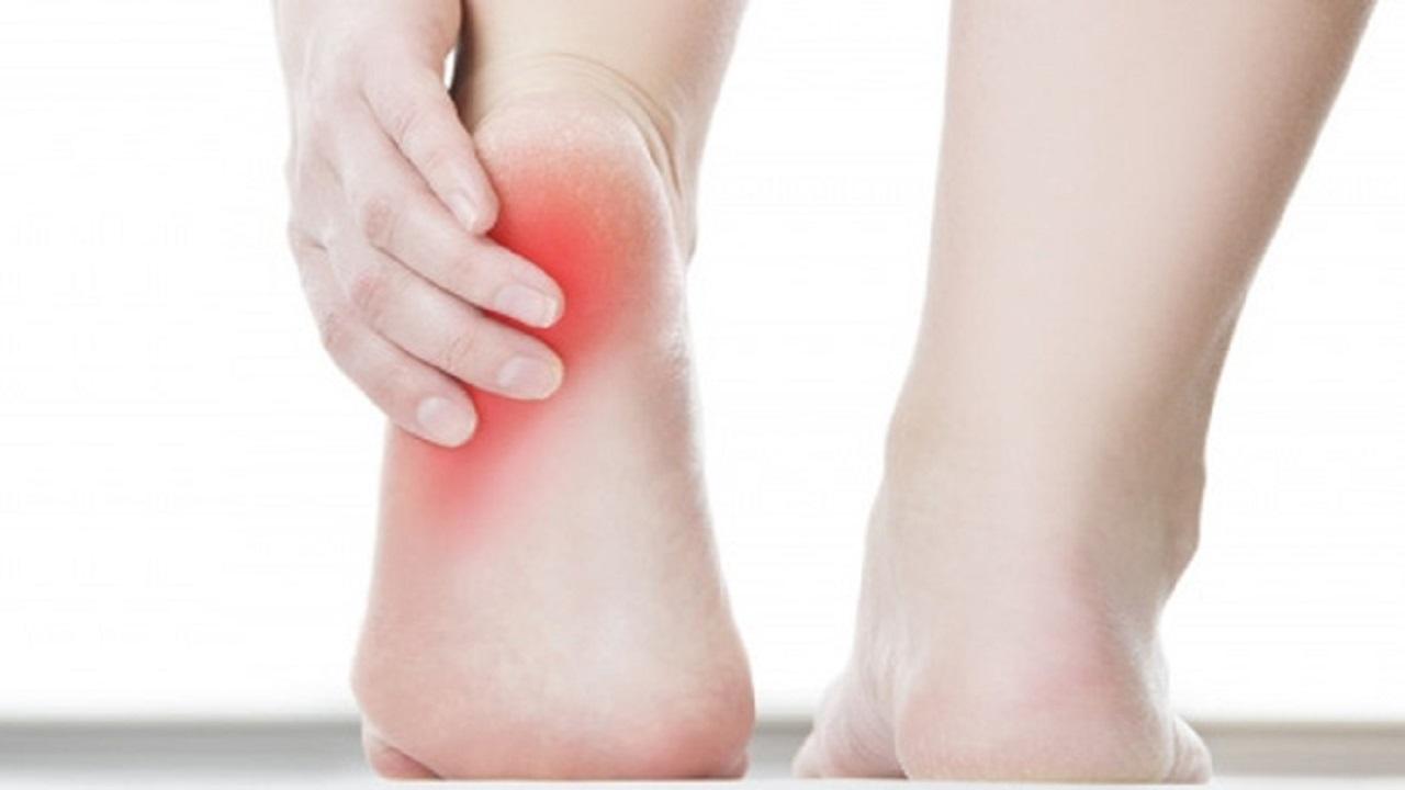 8 bài thuốc dân gian chữa đau gót chân, gai gót chân hiệu quả