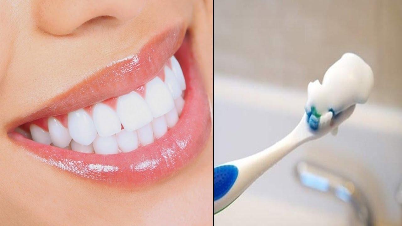 Mẹo làm trắng răng đơn giản, hiệu quả